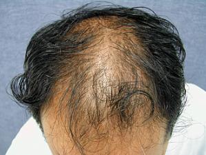 대머리 만드는 '탈모 유전자' 밝혀졌다